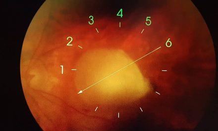 Prevenzione degenerazione maculare senile