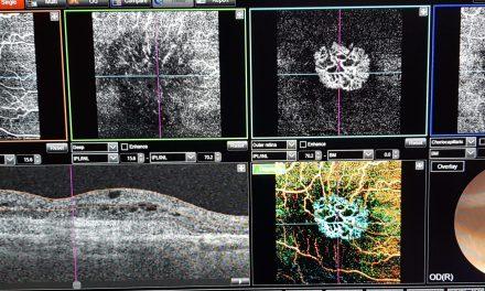 ANGIO-OCT, OCTA, Angiografia OCT Faenza, Ravenna, Imola, Forli', Cesena, Rimini, Bologna, Emilia Romagna