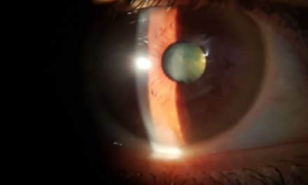 Asse intestino occhio (terza parte): digiuno, trapianto fecale, probiotici