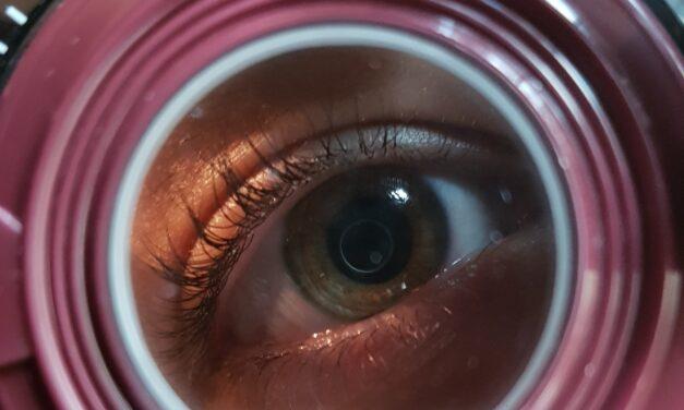 fattori di rischio miopia