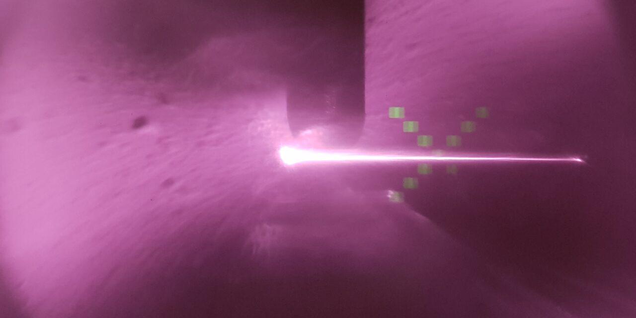 OCT il raggio laser per le maculopatie