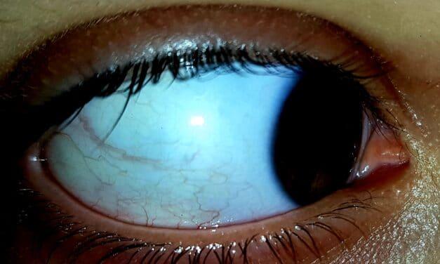 Occhi rossi al risveglio (di mattina)