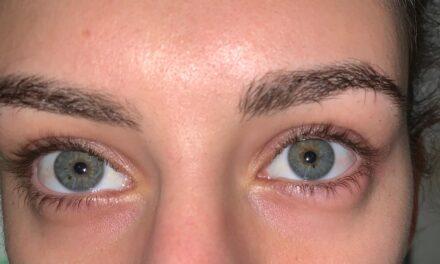 Rosacea oculare e blefariti