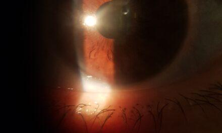 Occhiali dopo intervento di cataratta