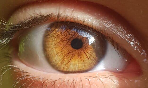 Cause miodesopsie – corpi mobili – distacco posteriore vitreo