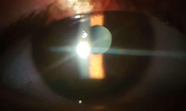 Dolore e occhio rosso dopo intervento di cataratta: cause e cure