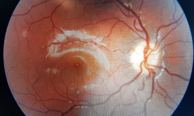 Probiotici e occhi: retinopatia diabetica